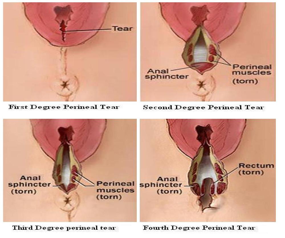 Рис. 2. Разрыв или травма промежности могут вызвать стойкие боли.
