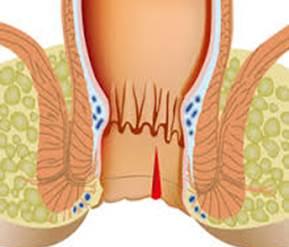 Анальная трещина операция | Эффективное лечение трещины заднего прохода