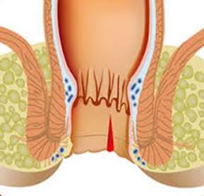 Рис. 1. Трещина заднего прохода - это разрыв стенки в результате прямой травмы прямой кишки.