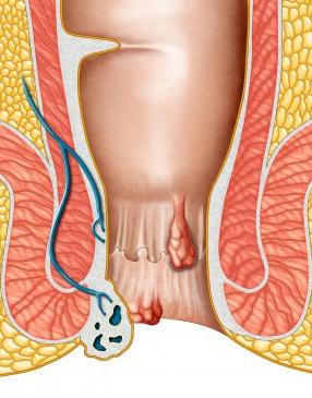Геморрой - часто встречающееся заболевание анального канала.