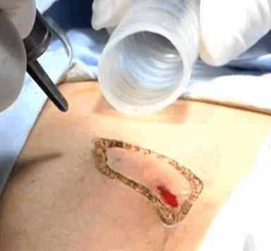 Рис. 2. Лечение рецидива кисты копчика лазером.