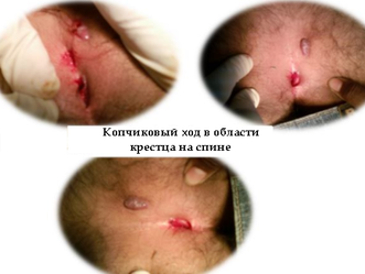 Киста копчика операция | Пять причин появления копчикового хода