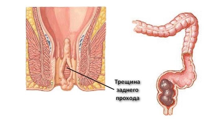 Покалывание в заднем проходе простатит остаточный простатит лечение