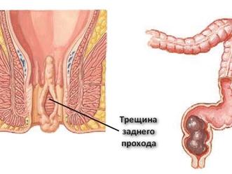 Анальная трещина операция | Основная причина трещины заднего прохода.