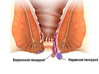 Геморрой операция | Что такое геморрой и как его лечить?