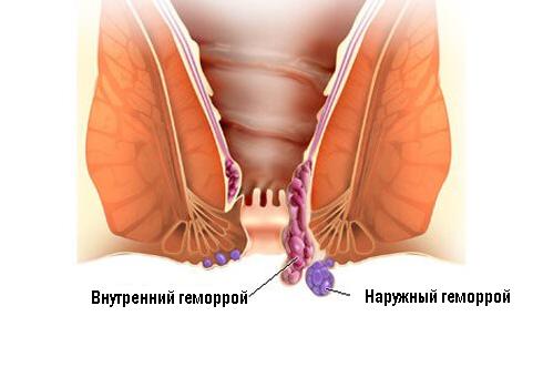 Рис. 1. Геморрой - это заболевание сосудов.