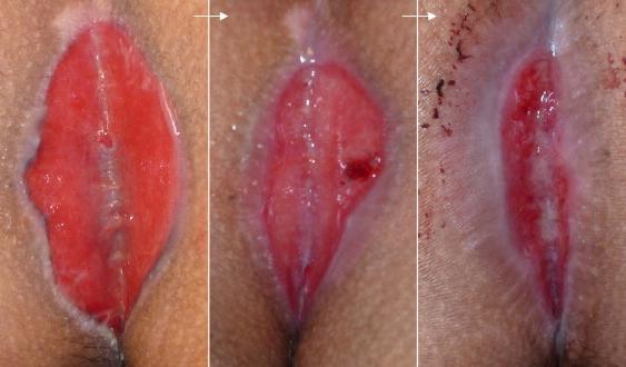 Рис. 2. Часто после операции на копчиковом ходе остаются открытые раны.