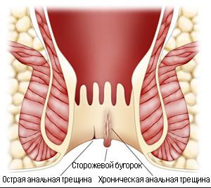 Рис. 2. Отличия острой и хронической анальной трещины.