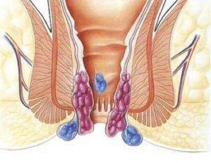 Рис. 1. При геморрое образуются геморроидальные узлы