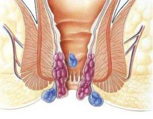 Лазерное удаление - самый эффективный метод лечения геморроя