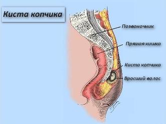 Киста копчика операция | Киста копчика у мужчин
