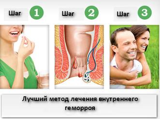 Геморрой операция | Лучший метод лечения внутреннего геморроя.
