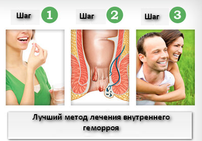 Рис. 1. Лучший метод лечения внутреннего геморроя.