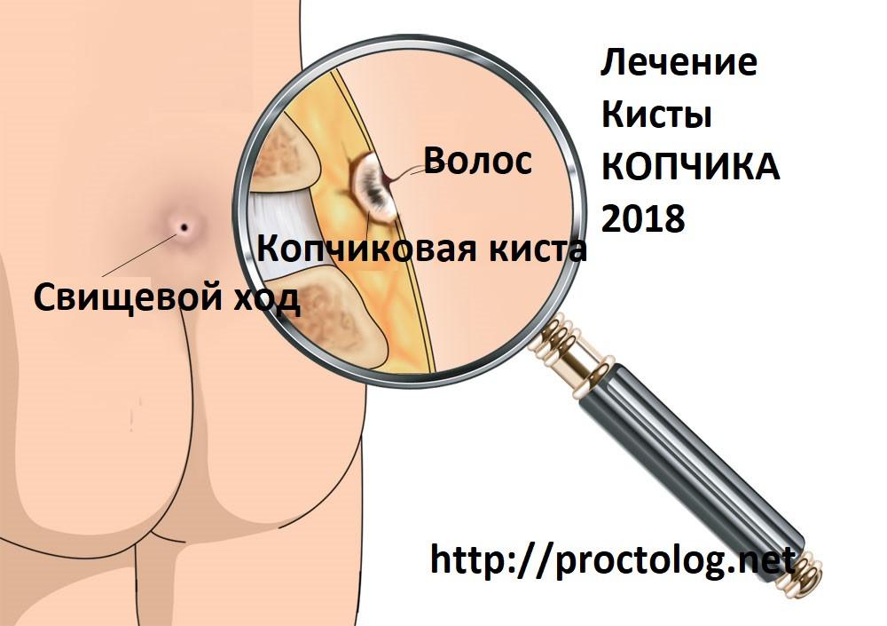Рис. 1. Лечение кисты копчика - 2018.