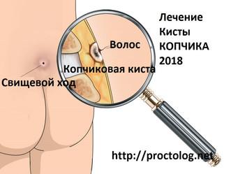 Киста копчика операция | Новый взгляд на лечение кисты копчика 2018