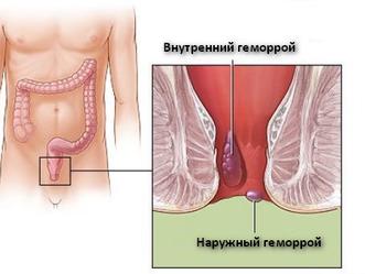 Геморрой операция | Пять признаков внутреннего геморроя.