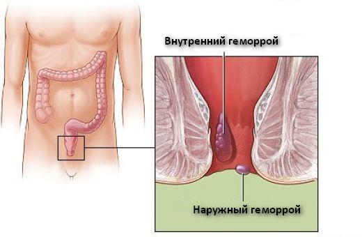Рис. 1. Внутренний геморрой находится внутри заднего прохода.