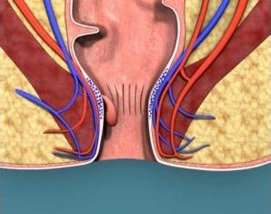 Рис. 2. Геморроидальные узлы возникают из-за расширения и воспаления вен в прямой кишке и заднем проходе