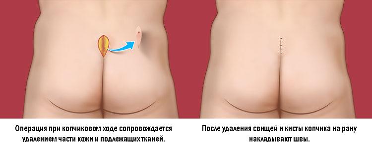 Рис. 1. Операция при копчиковом ходе травматична.