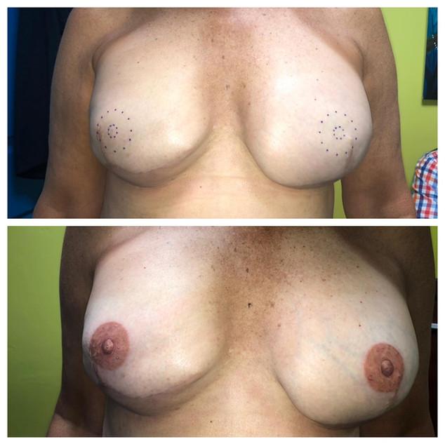 3D Nipple & Areola Tattoos