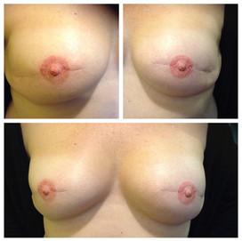 3D Nipple & Areola Tattoo