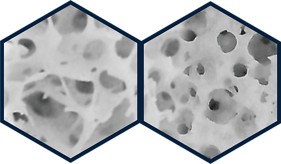 Bone Comparison - Hexagons.png