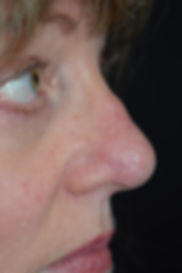 Skin lesion removal, mole removal, cyst removal, skin tag removal in Chester, Cheshire, Wirral, Liverpool, Manchester, Yorkshire, York, Harrogate, Ilkley, Leeds, London, Harley Street