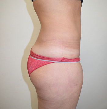 Mini-abdominioplasty, Mini-tummy tuck, Abdominoplasty, Tummy tuck, Lipoabdominoplasty, Liposuction in Chester, Cheshire, Wirral, Liverpool, Manchester, Yorkshire, York, Harrogate, Ilkley, Leeds, London, Harley Street