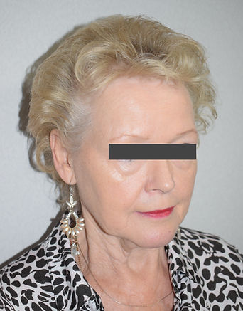 Facelift, Mini-lift, mini-facelift, MACS facelift, short scar facelift, mid-face lift, facial surgery in Chester, Cheshire, Wirral, Liverpool, Manchester, Yorkshire, York, Harrogate, Ilkley, Leeds, London, Harley Street
