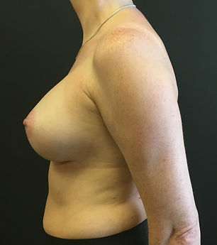 Breast augmentation, Breast enlargement, Boob job in Chester, Cheshire, Wirral, Liverpool, Manchester, Yorkshire, York, Harrogate, Ilkley, Leeds, London, Harley Street