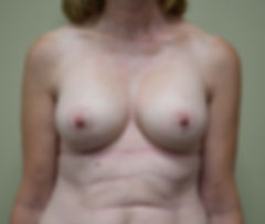 After picture brast augmentation (boob job)