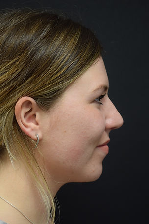 Rhinoplasty, Nose job, Nose surgery in Chester, Cheshire, Wirral, Liverpool, Machester, Yorkshire, York, Harrogate, Leeds, Ilkley, London, Harley Street