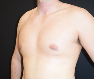 Gynaecomastia correction, Man boobs surgery, male chest reduction, male cosmetic surgery in Chester, Cheshire, Wirral, Liverpool, Manchester, Yorkshire, York, Harrogate, Ilkley, Leeds, London, Harley Street