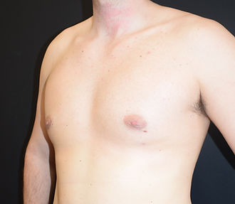 Gynaecomastia correction, Man boobs surgery, male chest reduction, male cosmetic surgery in Chester, Cheshire, Wirral, Liverpool, Manchester, Yorkshire, York, Harrogate, Ilkley, Leeds, London, Harlery Street