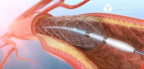 angioplastie2.jpg