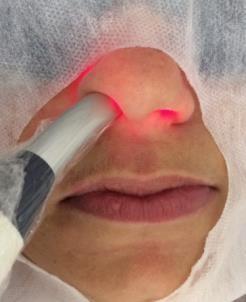 Laser para tratamento da Parosmia e Anosmia da COVID-19