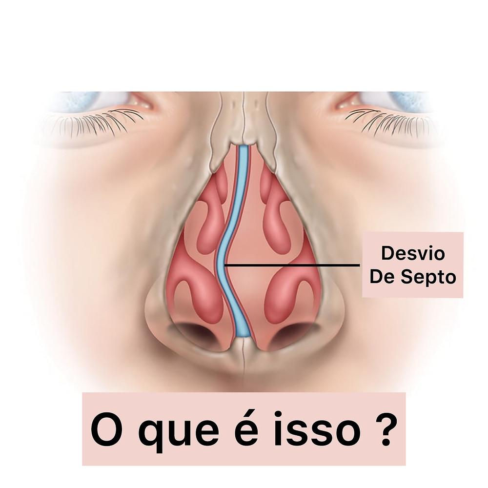 Essa imagem mostra o desvio de septo nasal e como ele atrapalha a respiracao quando é muito grande