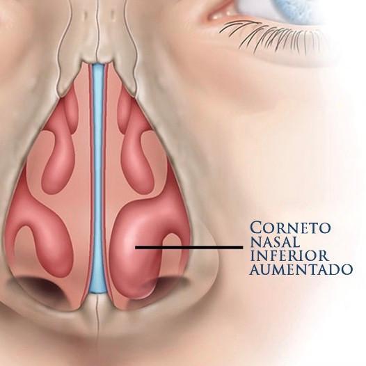 A imagem mostra como o aumento dos cornetos influencia na respiração, atrapalhando o fluxo de ar e gerando uma obstrucao nasal