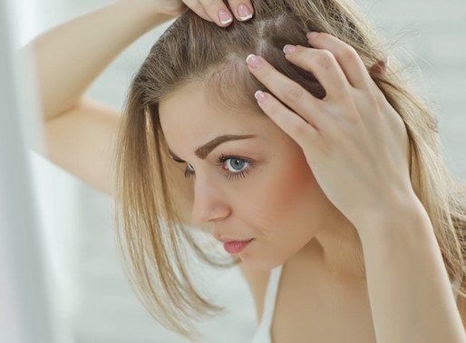 Opciones para cubrir la pérdida de cabello