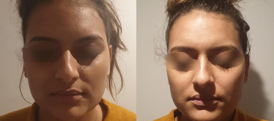Radiofréquence de visage