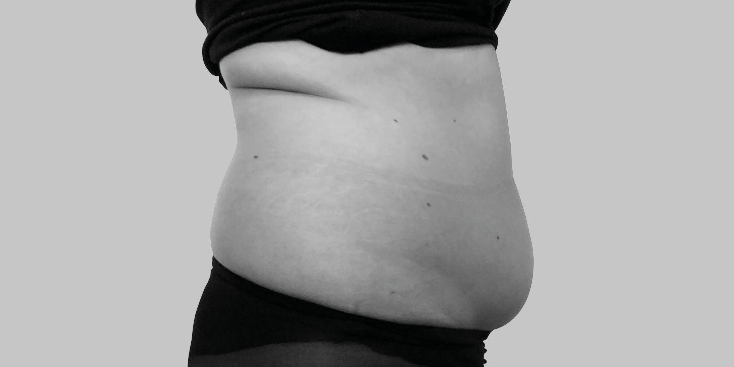 Klient før fedtfrysning