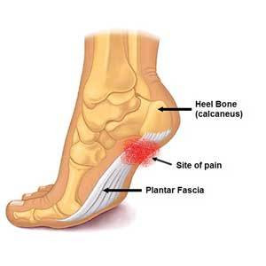 Plantar Fasciitis Doesn't Have to Keep You Up at Night