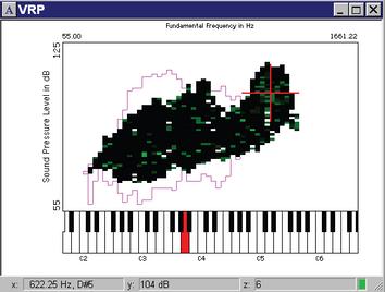 Voice Range Profile