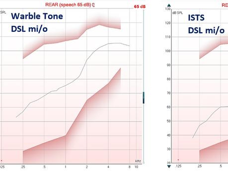 DSL mi/o uygulama formülüyle REAR ölçümünde, uyaran değişince neden hedef de değişiyor?