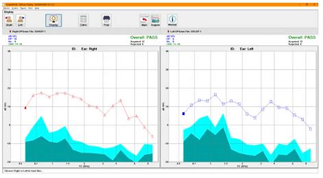 IHS DPOAE Option ScreenShot.PNG