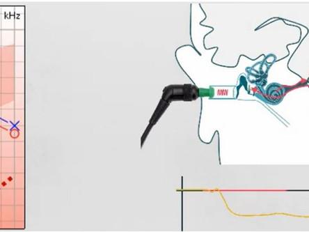eSRT - Elektriksel Uyarılmış Stapes Refleks Eşik Testi