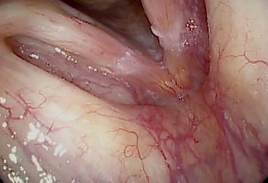 9400-Larynx-IMAGE.png