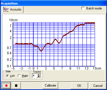GM Instruments Akustik Rinometre A1resul