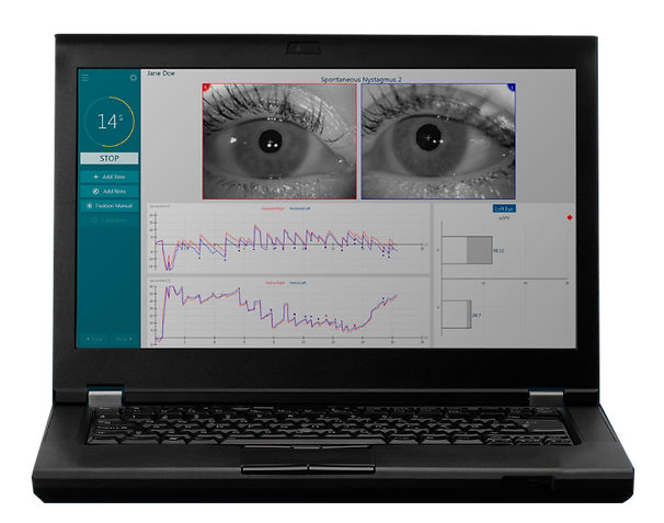 Visual-Eyes-525-VNG-interacoustics.png