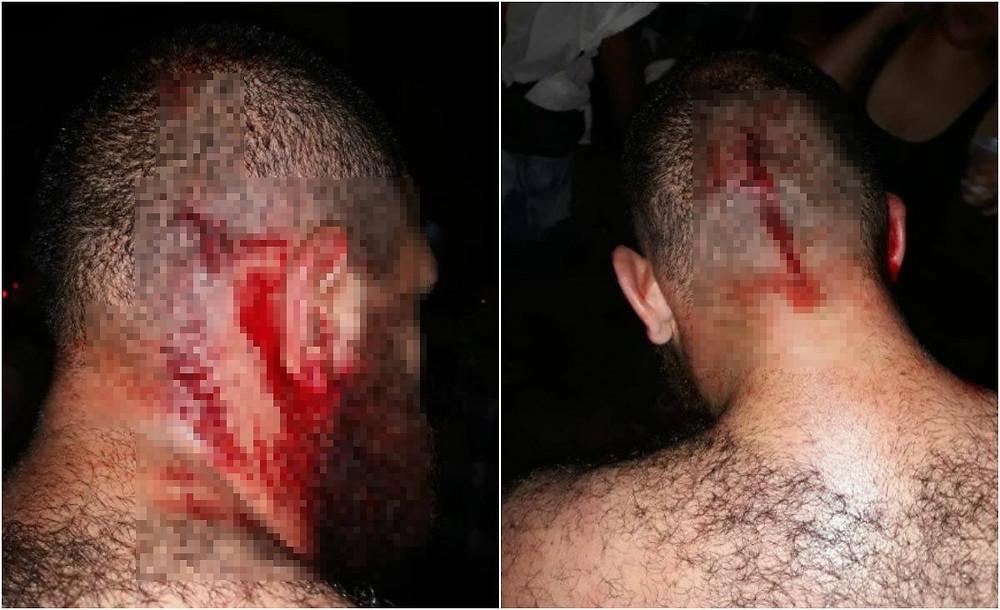 Membros de torcida organizada agridem homem com boné do MST
